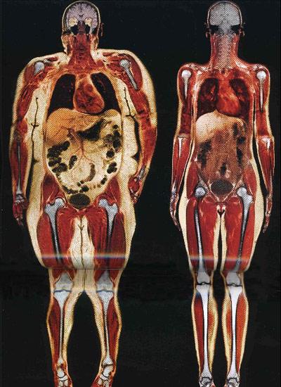 Žena z USA a žena z Evropy – rentgen